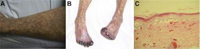 pulse steroids rheumatoid arthritis