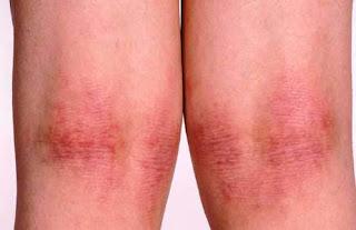 Atopic dermatitis.1