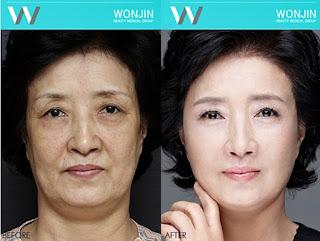 sebelum dan sesudah lifting di Wonjin-2