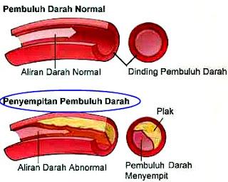 Obat Herbal Penyempitan Pembuluh Darah Ekstrak Alami