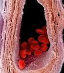 Chế độ ăn uống, kiêng kị cho người bị mắc bệnh Xơ vữa động mạch