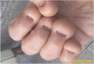 Já pensou segurar uma agulha com unhas assim?!?!
