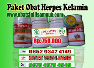 herpes, herpes kelamin, obat herpes, obat herpes kelamin, herpes zoster