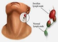 penyakit kanker kelenjar getah bening