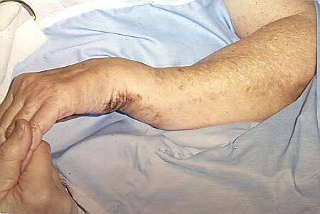a disfigured broken wrist arm deformity