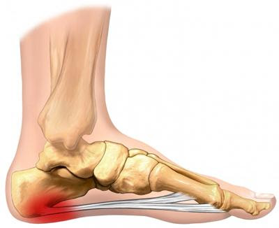 How to relieve Fasciitis plantar