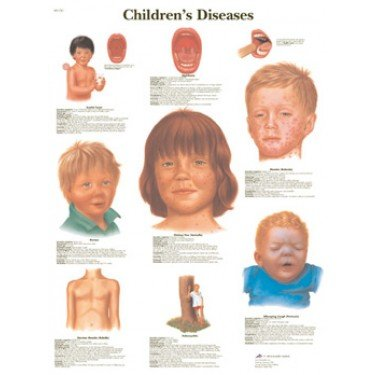 Children's Diseases