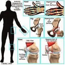 Obat Herbal Radang Sendi Tulang Kaki dan Tangan