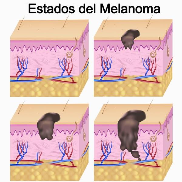 Prevención y tratamiento del cáncer de la piel