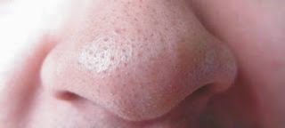 Cara Cepat Menghilangkan Komedo di Hidung