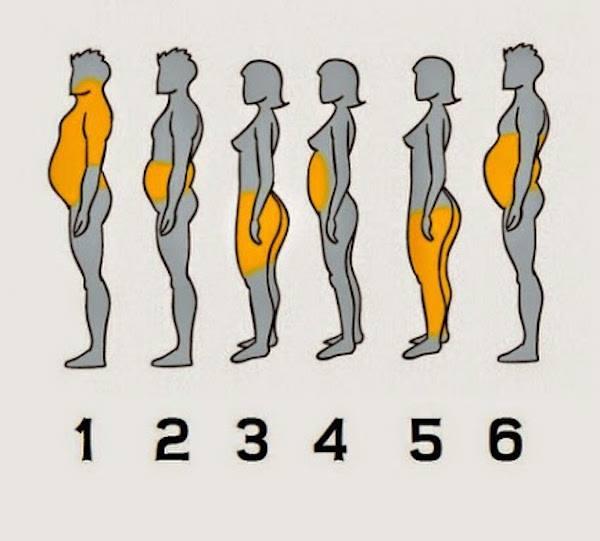 Enam  Jenis Obesiti Disebabkan Pelbagai Faktor