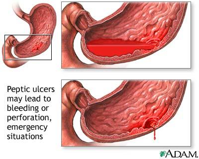 Gastritis Stool Color