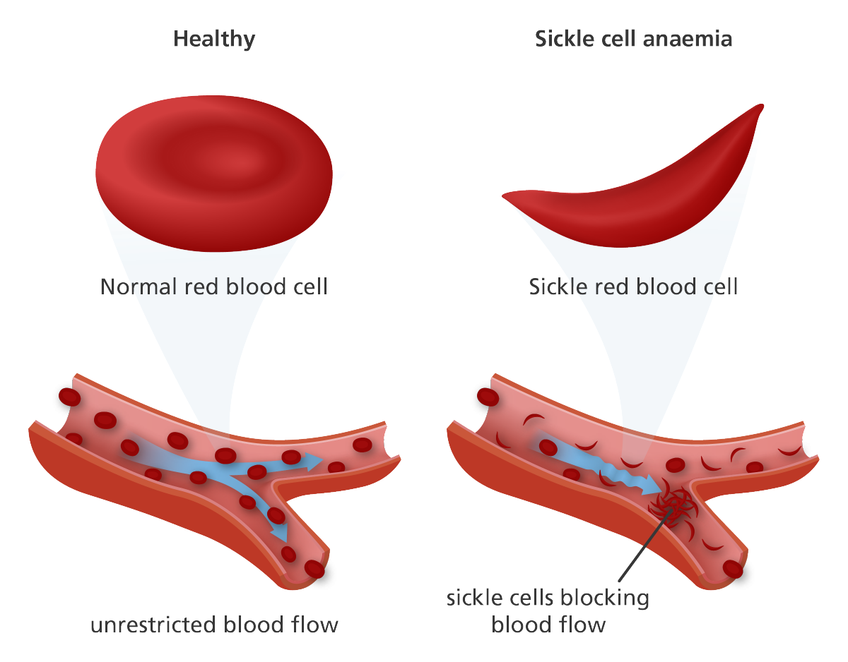Contemporary Anatomy Of Anemia Elaboration Physiology Of Human
