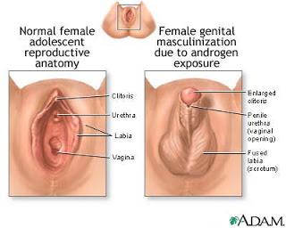 Bentuk vagina Mutkhamah