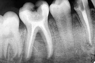 image root canal tooth