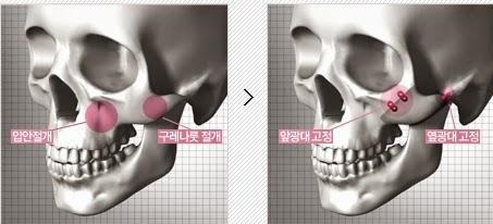 Koreksi tulang pipi dengan pemotongan tulang di Wonjin