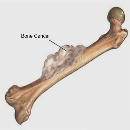 http://www.orthopedic-oncologist.com/soft-tissue-sarcoma.php