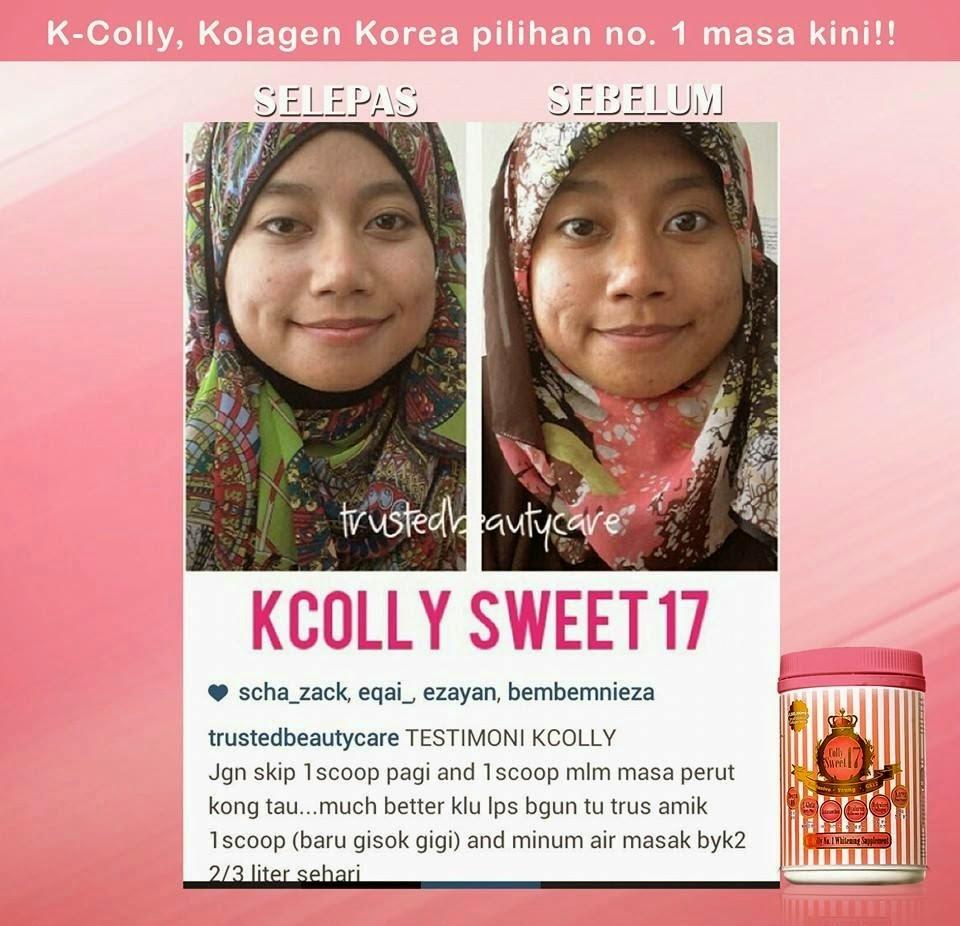 Produk Kesihatan Dan Kecantikan Murah Murah K COLLY SWEET 17