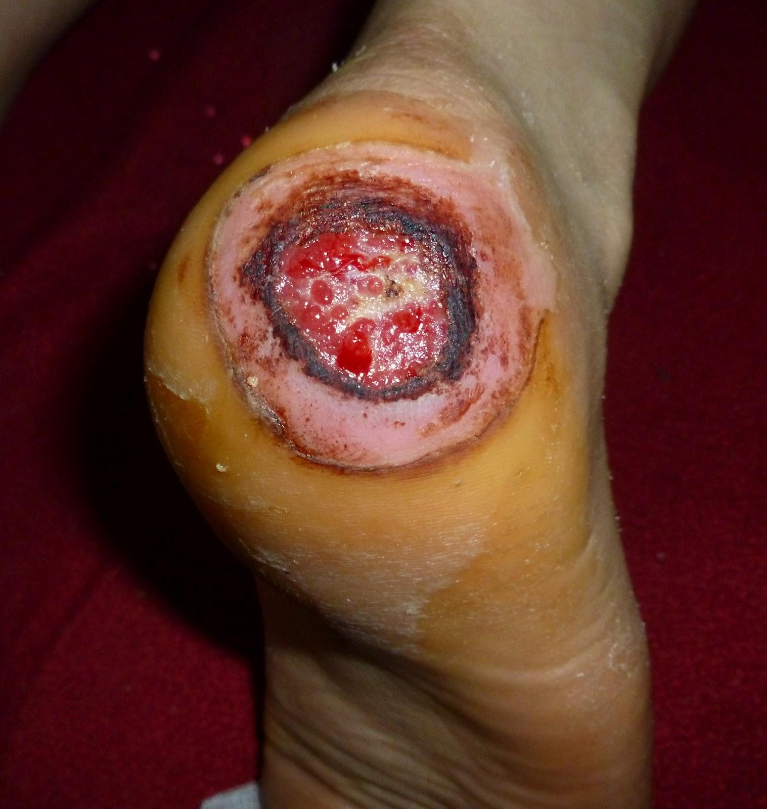 Revision Casos De Cirugia General Quemadura En Talones