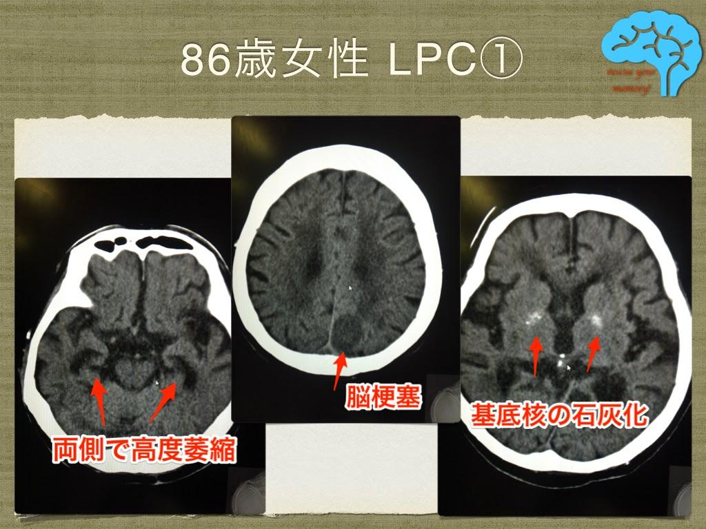 LPC レビー・ピック複合 頭部CT