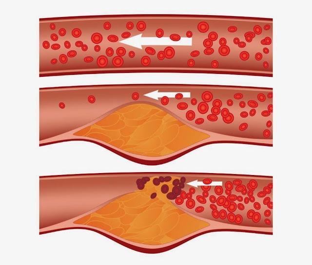 Delapan Cara Menurunkan Kolesterol Jahat ~ Obat Sakit