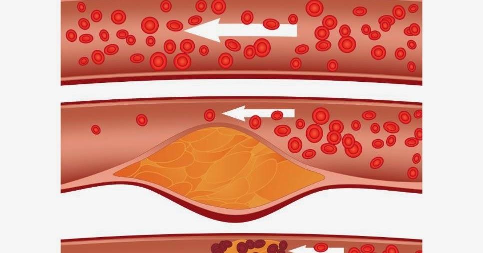 Obat Penurun Kolesterol Jahat Cegah Anda dari Ancaman Stroke dan Sakit Jantung