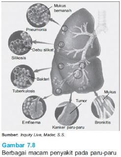 berbagai macam penyakit paru paru