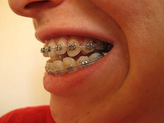 how to fix open bite teeth