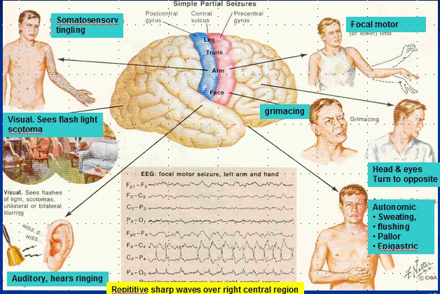 Public Health Clinical Aspect Of Partial Epilepsy