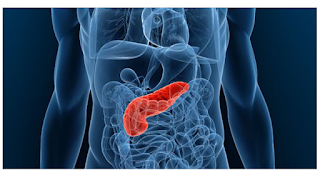 Common Antibiotic Part Of Potential Pancreatic Cancer Therapy
