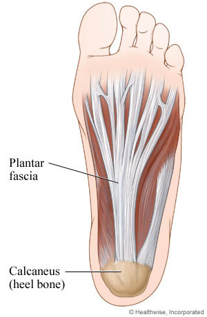 how to cure plantar fascitis