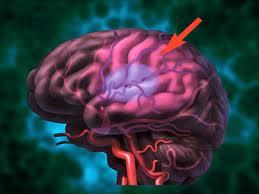 LeefGezonder: Magnesium helpt tegen beroerte en herseninfarct: leefgezonder.blogspot.com/2012/01/magnesium-helpt-tegen-beroerte-en...