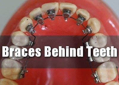 Braces Behind Teeth
