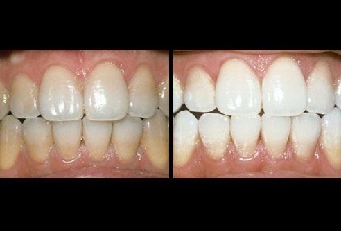 Важливим негативним фактором забарвлення зубів є паління. Колір зубів  змінюється також з віком. Емаль зуба стає тоншою f0c9b8fc7364f
