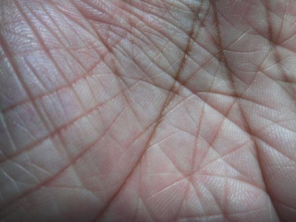ichthyosis vulgaris hands