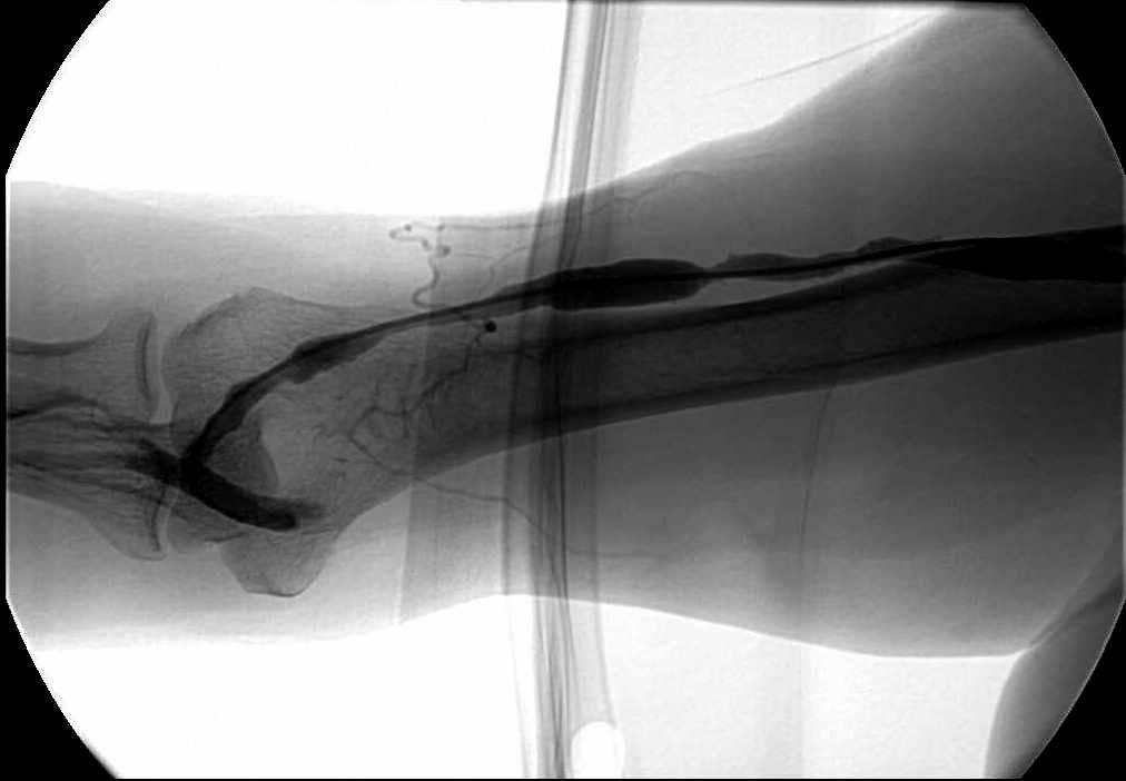 evolution of a dialysis fistula | interventional radiology casebook, Cephalic Vein