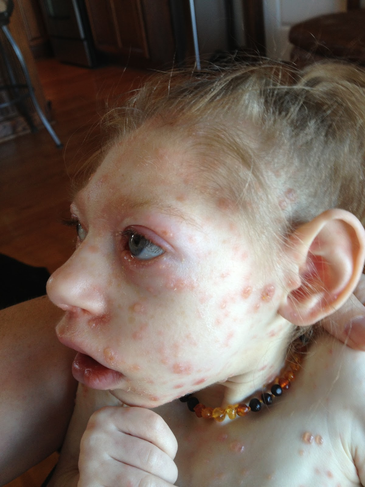 how to know when chicken pox is not contagious