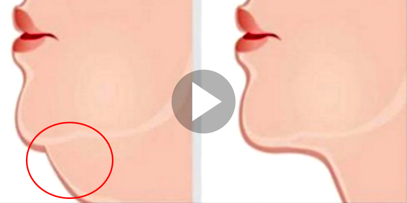 how to get rid of my double chin fast