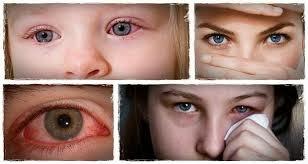 Las ojeras oscuras del problema con los riñones