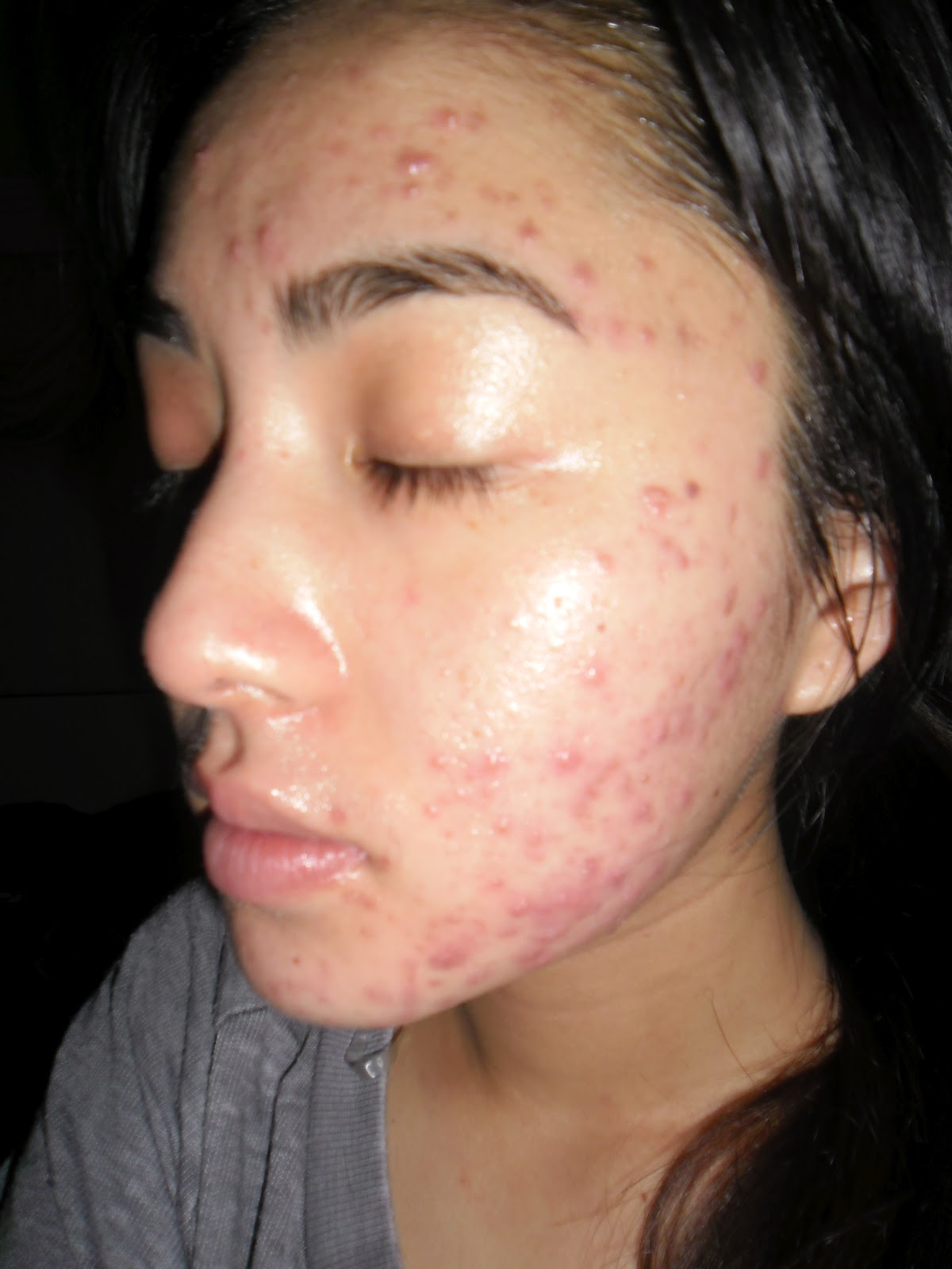 Dating Someone With Severe Acne