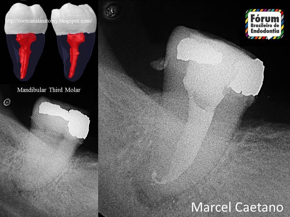 Endodontia Avançada: Anatomia de um Terceiro Molar Inferior