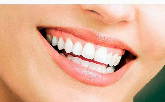 Tips Cara Memutihkan Gigi Secara Alami Bersih dan Sehat
