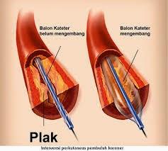 Obat Herbal Jantung Koroner