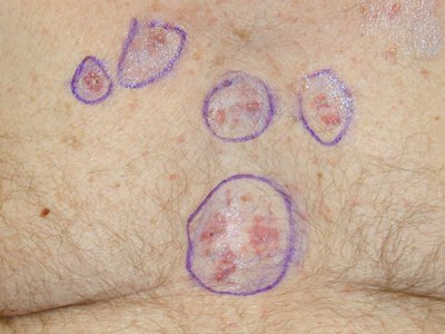 basal cell skin cancer photos