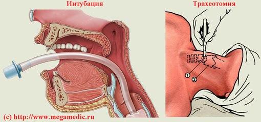 Интубация и трахеотомия