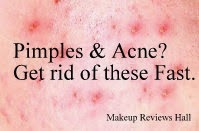Treat Acne - Quick & Natural