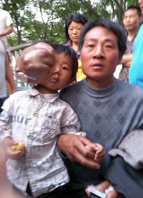 garoto chines com tumor na cabeça