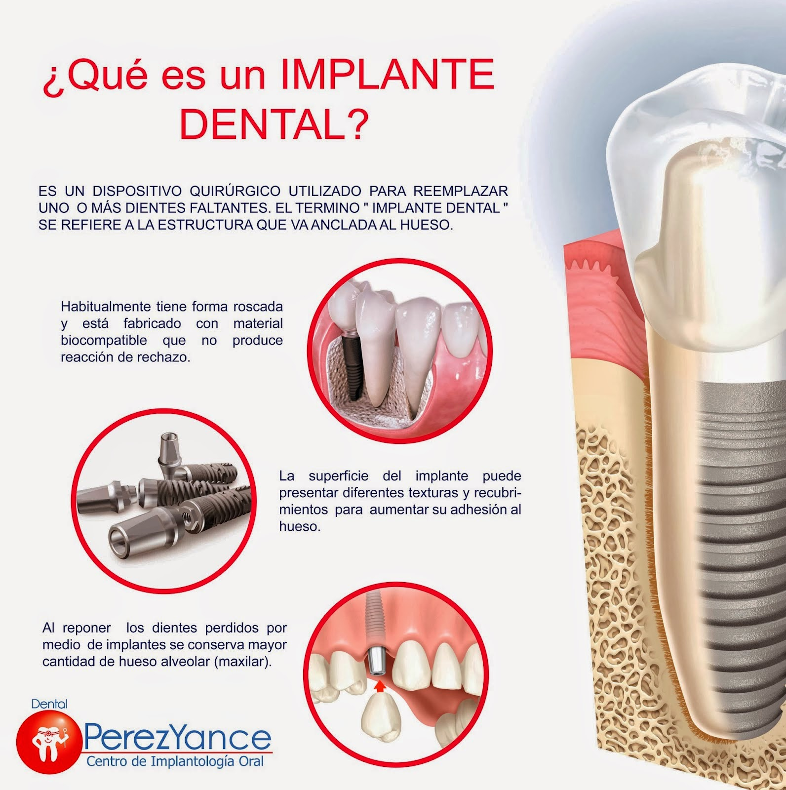 Implante Dental Peru