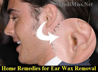 how to safely clean ears of wax