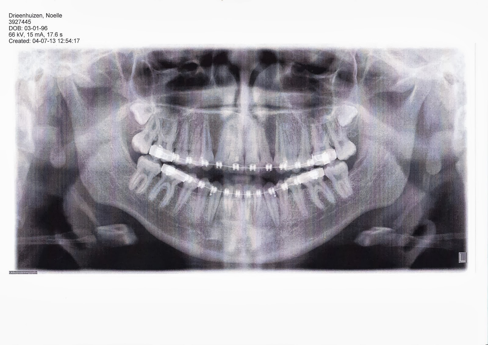 tanden trekken onder narcose ziekenhuis